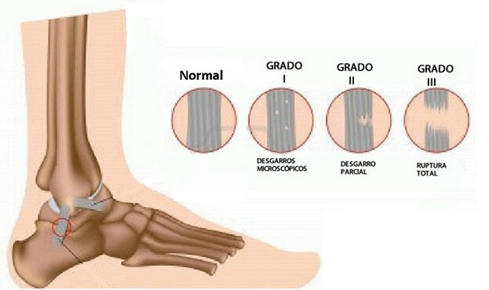 diferentes grados de esguince de tobillo o esguince de pie torceduras graves contusión